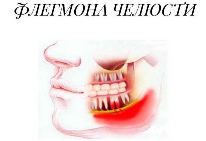флегмона зуба после пульпы