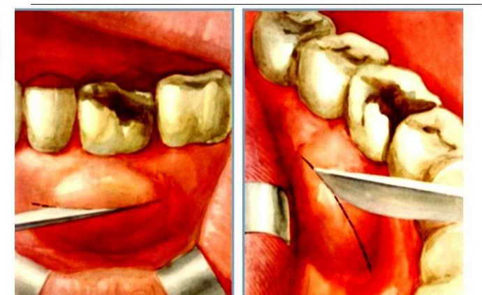 Хирургическое лечение флюса на десне