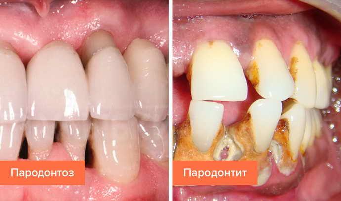 Возможные осложнения от зубного флюса