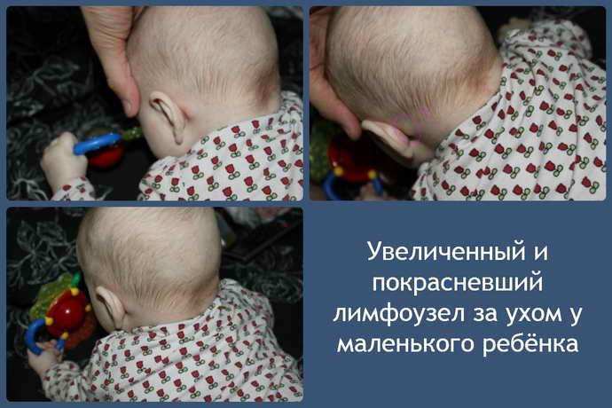 Легкая форма вируса у детей