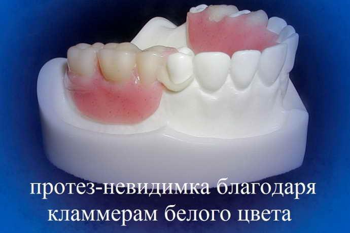 гибкие съемные зубные протезы особенности