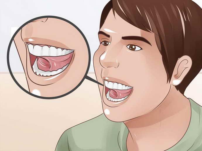 Съемные зубные изделия не нуждаются в устранении с десен каждую ночь