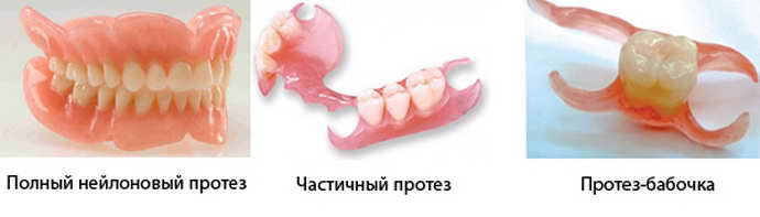 гибкие съемные зубные протезы виды