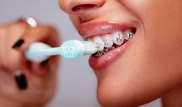 Очень важно в период ношения брекет-систем вести правильный уход за зубами