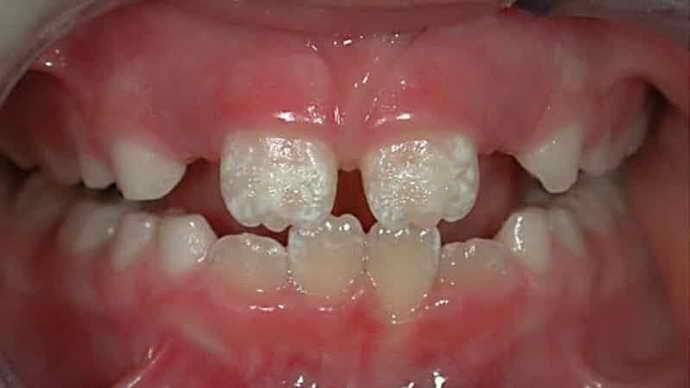 Дефективность зубов и короткая уздечка языка