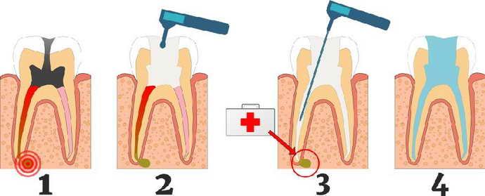 Удаление или лечение зуба с гранулемой