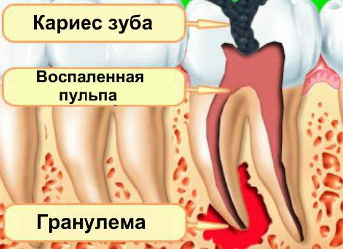 Что такое гранулема зуба