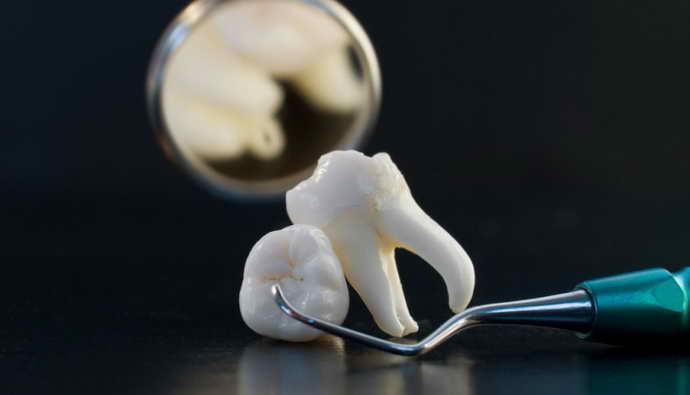 Иногда гранулема зуба является результатом некачественного лечения