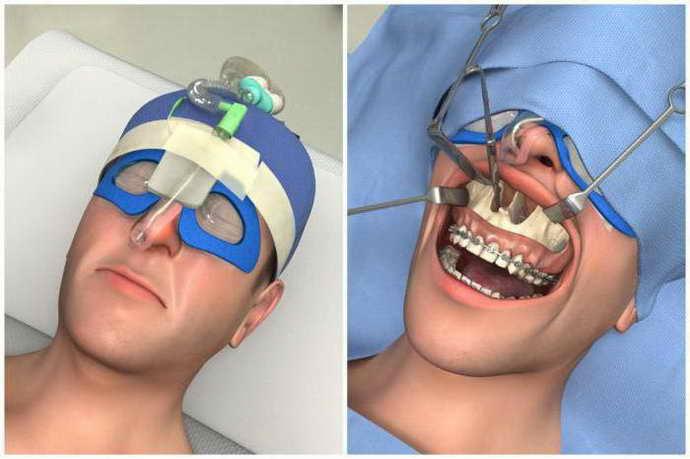 хирургическое исправление прикуса в 30 лет