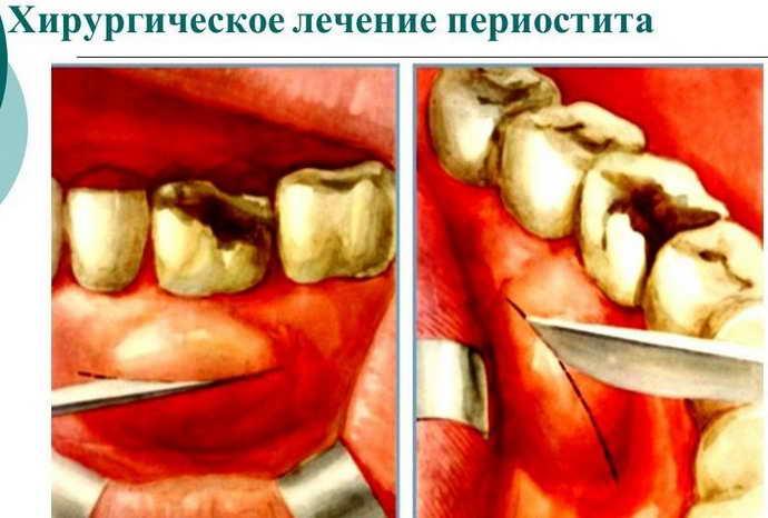 Хирургические методы лечения флюса