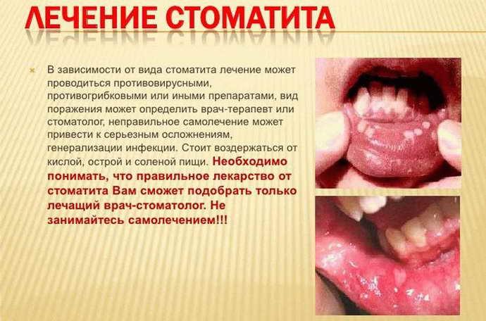 При тяжелой форме хронического афтозного стоматита