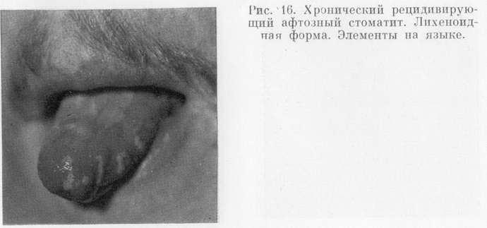 Лихеноидная форма стоматита