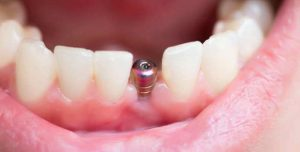 возможны ли импланты при пародонтозе