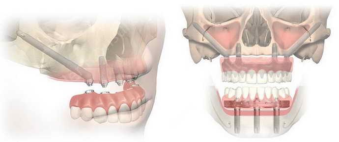 Классический метод имплантации при пародонтозе
