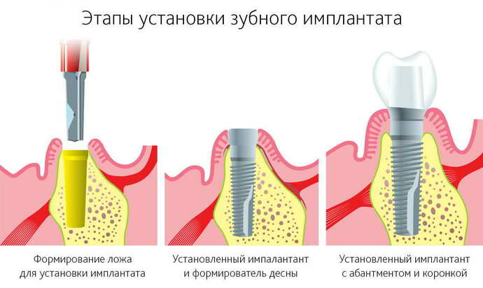 основные отличия всех трех методов имплатнтации при пародонтозе