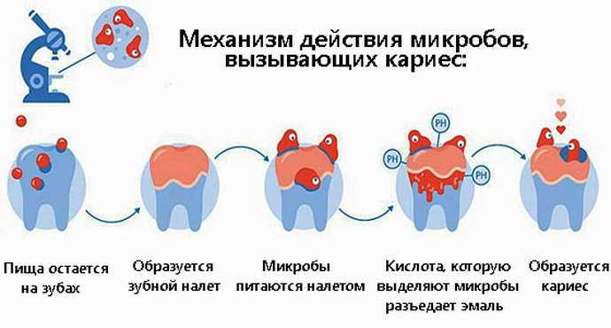 механизм действия кариеса