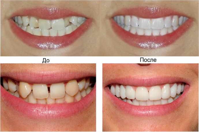 Что выбрать для выпрямления зубов