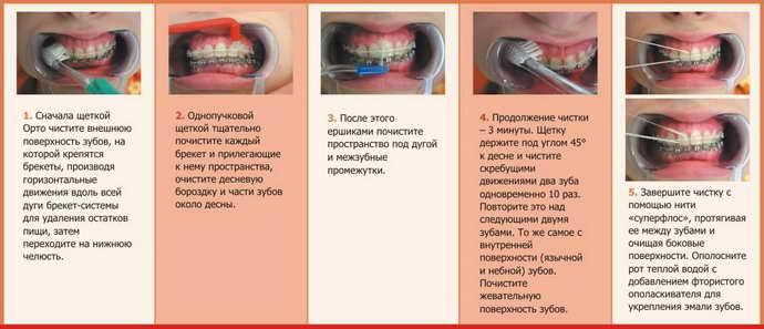 как чистить зубы с брекетами
