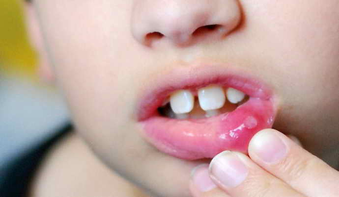 Герпесная форма стоматита у ребенка