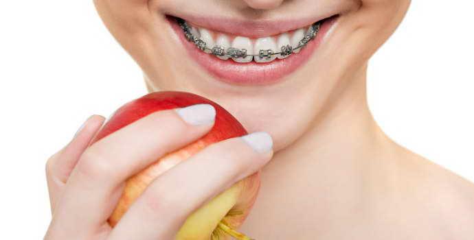 Что можно есть с брекетами — что нельзя кушать при наличии зубной конструкции