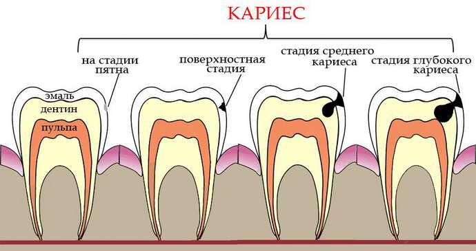 Симптомы и стадии течения кариеса