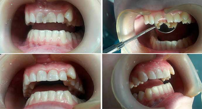 когда нужно ставить зубные коронки