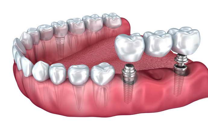 установка зубных коронок перед мостовидным протезом