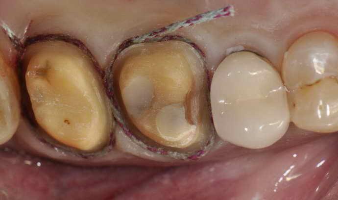 Как происходит препарирование зуба