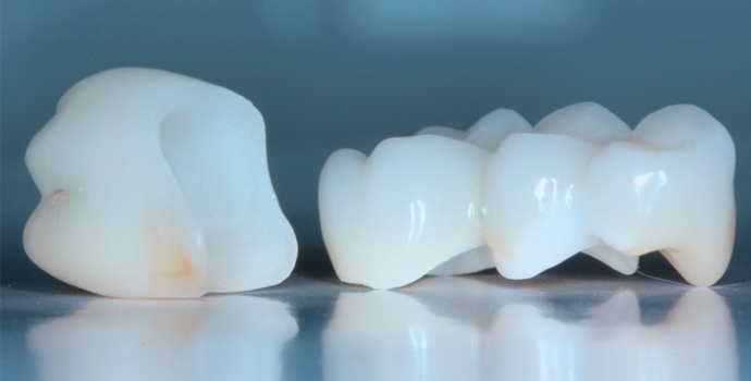 Как делают коронку на зуб