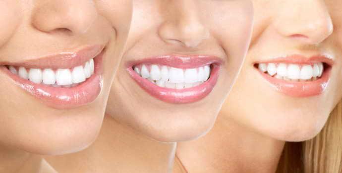 Красивые зубы – как сделать и сколько стоит?
