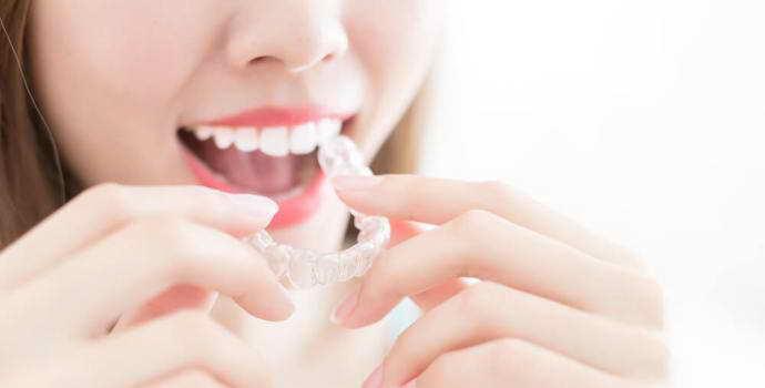Эластопозиционеры для выравнивания зубов