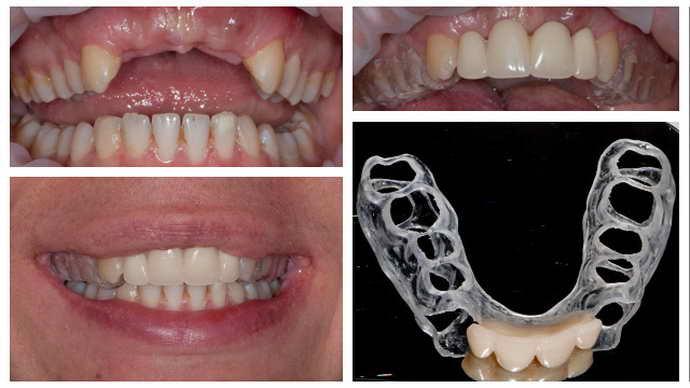 Временные конструкции протезов для зубов