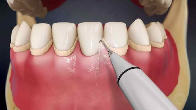 Начальное лечение зубов перед протезированием