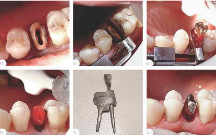 Подготовка зубов к протезированию