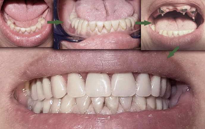 Что такое протез для зубов
