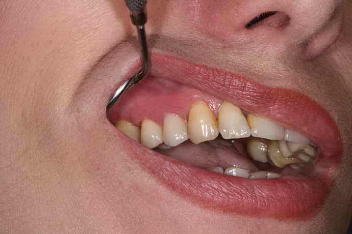 Как подобрать зубной протез: советы стоматологов