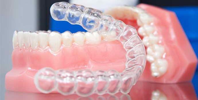 Выравнивание зубов с помощью капов