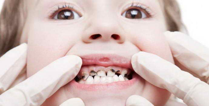 Бутылочный кариес у детей – фото, лечение молочных зубов до 3 лет и после 3 лет
