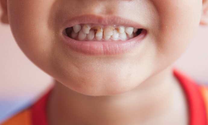 образование налета на зубах и кариес как причина стоматита