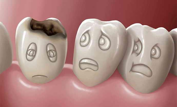 Факторы ужасного запаха изо рта