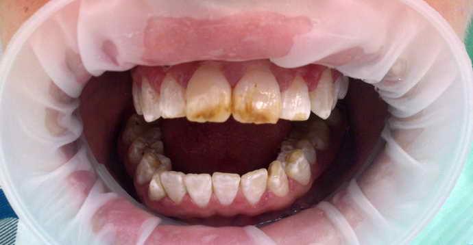 потеря привлекательного вида зубов из-за возраста и никотина