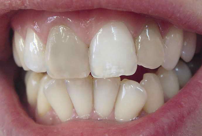 небольшой поворот зуба по отношению к вертикальной оси