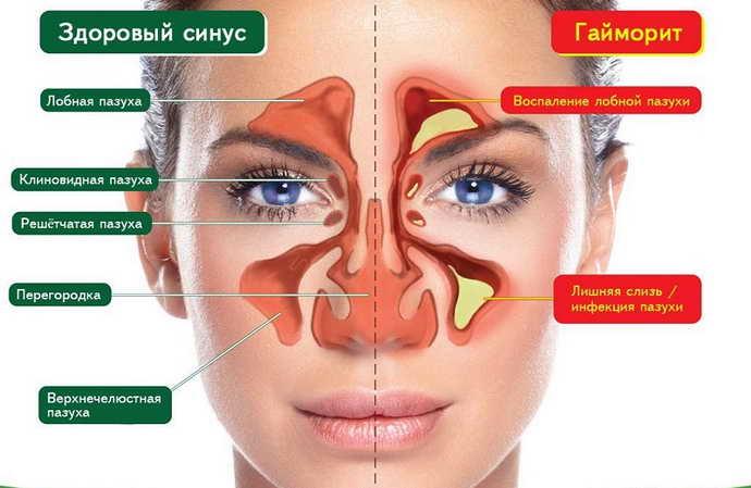 Осложнения после кисты зуба