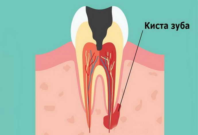 В домашних условиях лечение кисты зуба