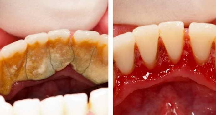 Симптомы клиновидный дефект зубов