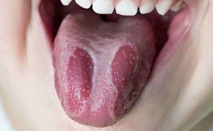 Глоссит и коричневый налет на языке