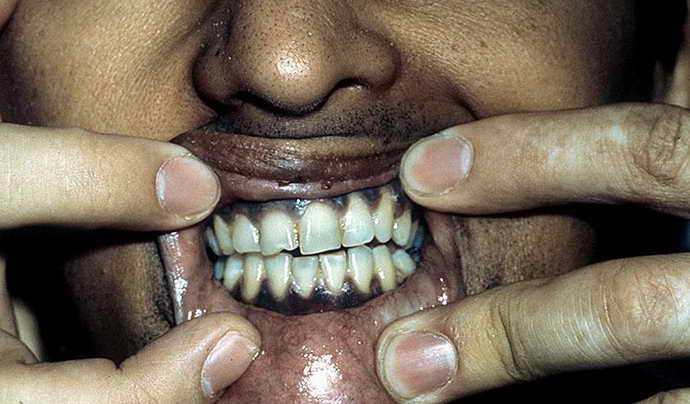 болезнь Адисона и коричневый налет на языке