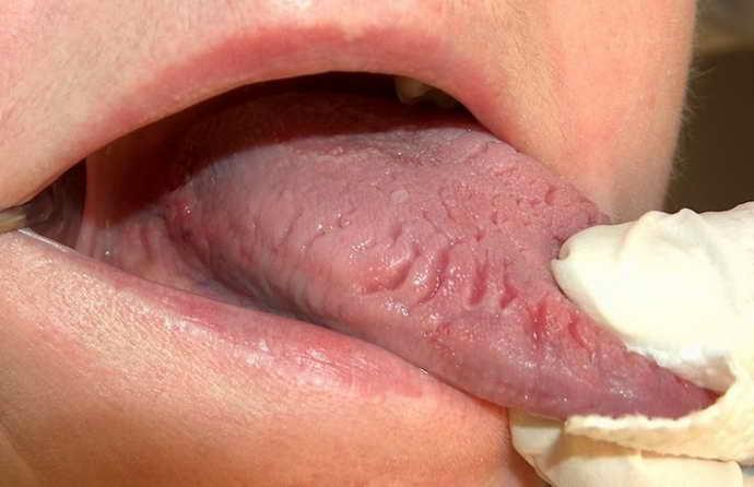 Стоматит и коричневый налет на языке