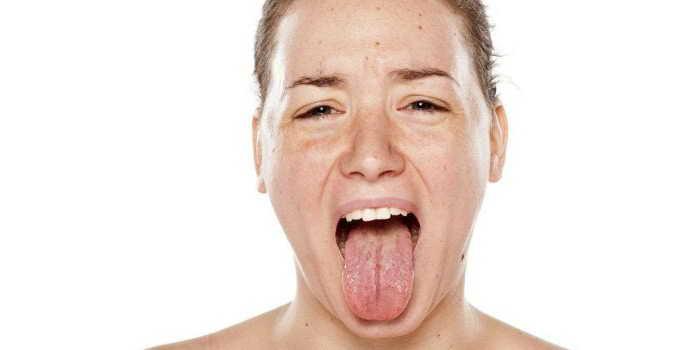 Пятна на языке (красные, белые, коричневые, темные, лысые): причины точек и налета на языке