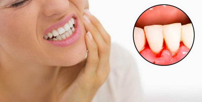 Лечение кровоточивости десен и запаха изо рта в домашних условиях народными средствами